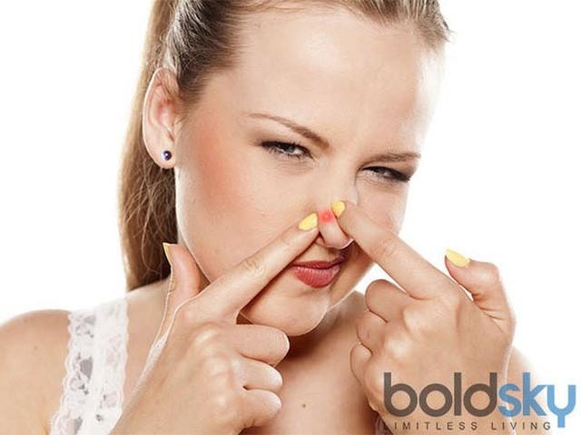 Nặn mụn: Việc nặn mụn dễ khiến da bị viêm, để lại sẹo. Mặc dù thói quen này có thể giúp giảm sự khó chịu nhưng lại gây tổn hại đến da và đẩy nhanh quá trình lão hóa.